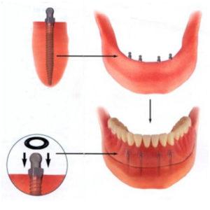 implant-10-1
