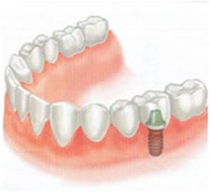 implant-4-1