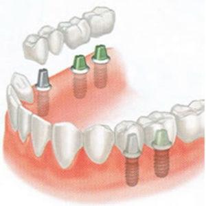 implant-81-1