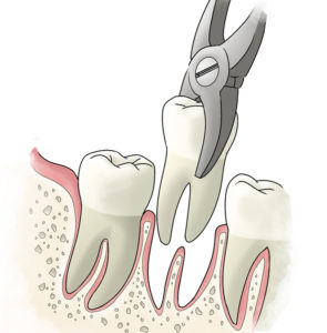 tooth-extraction-large-e1437166813892-1